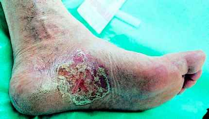 Some Uncommon Conditions - Diabetic Foot - Diabetes Aid