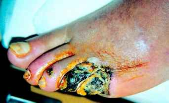 Diabetic Foot Infection Necrosis