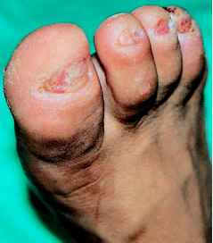Chronic Onychomycosis