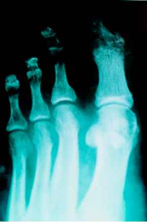 Osteolytic Toe
