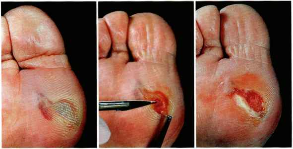 Diabetic Foot Bullae