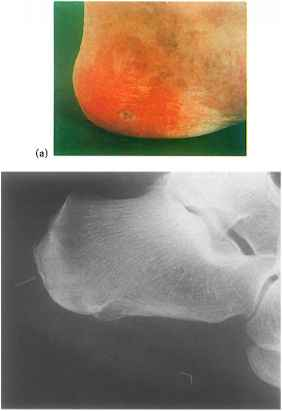Diabetic Foot Ulcer Ray