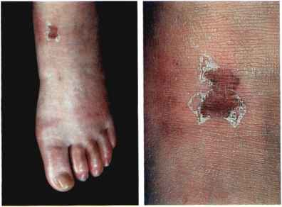 Skin Disorders Diabetic Patients