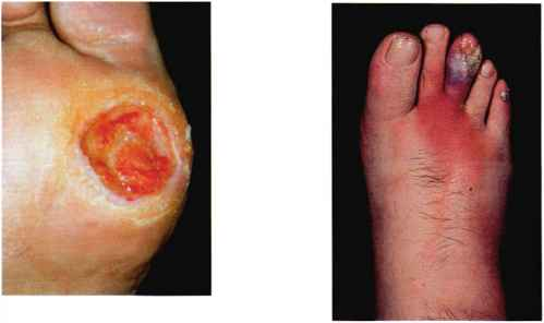 Wagner Classification Diabetic Foot