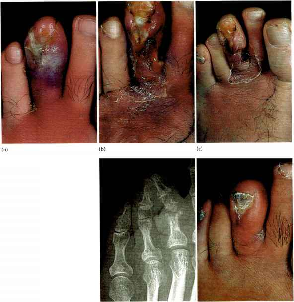 Diabetic Foot Management