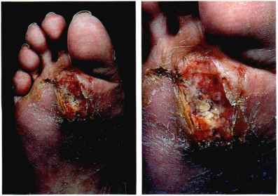 Squamous Cell Carcinoma Foot