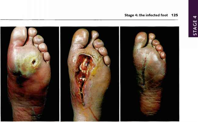 Neuroischemic Foot Ulcer