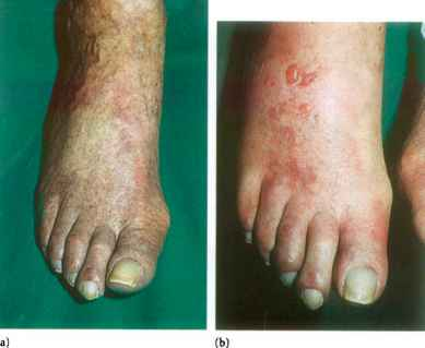 Diabetic Foot Discolouration
