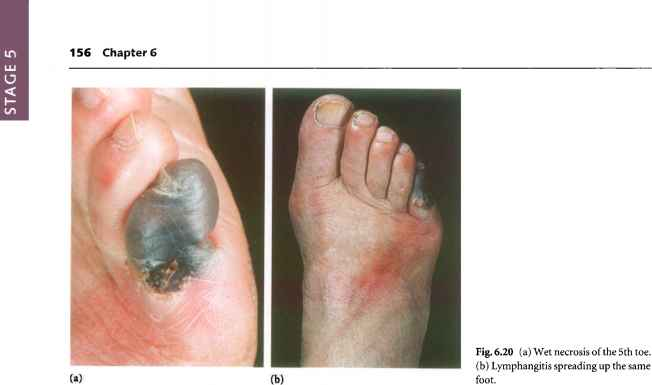 Toe Venous Ulcer Infected