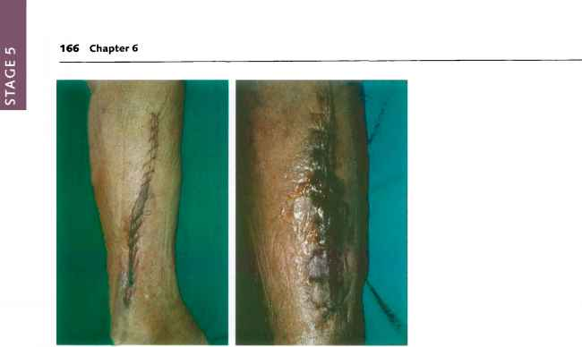 Amputation From Septic Infection Images