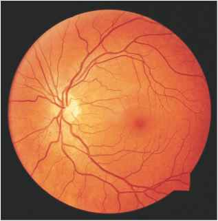 Normal Fundus Diabetes Fundus