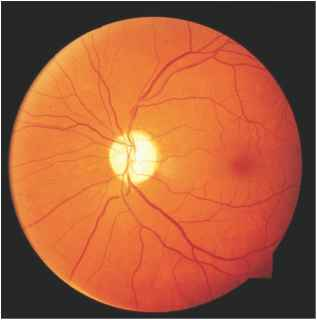 Optic Atrophy Fundus Picture