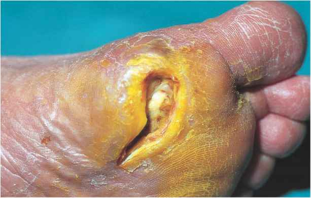 Chronic Ulcer With Foreign Body