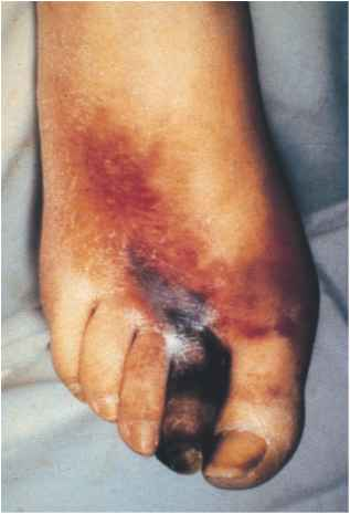 Dorsal Foot Ulcers