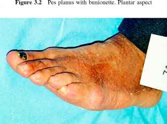 Pes Planus And Pes Cavus