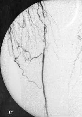 Angiography Stenosis Superficial Femoral