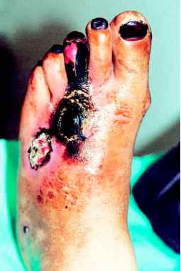 Gangrene Feet