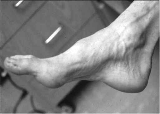 Ttt Wasting Distal Muscles Foot