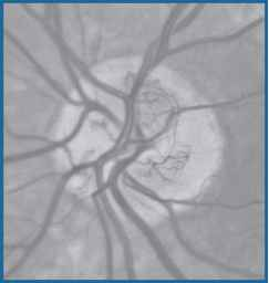 Diabetic Retinopathy Study Photo 10a