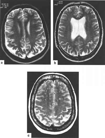 Insulin Overdose Cerebral Damage Mri
