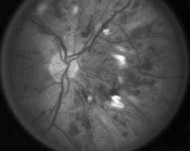 Nonproliferative Diabetic Retinopathy