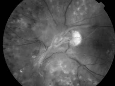 Tractional Retinal Detachment