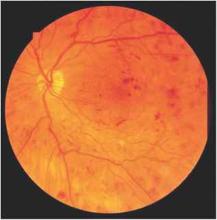 Intraretinal Microvascular Abnormality