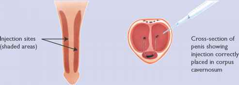 Sildenafil in the treatment of erectile dysfunction an