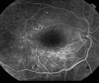 Fundus Angiography Diabetic Retinopathy